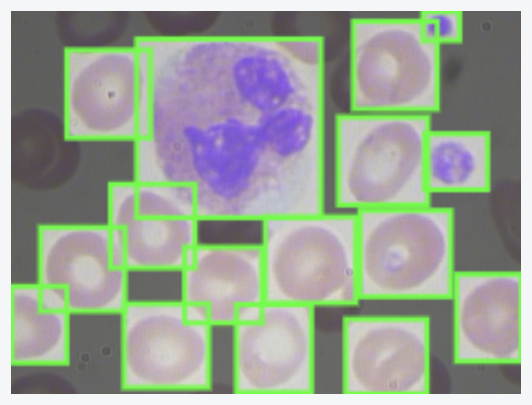 A microscope slide from the Blood Cell Count and Detection (BCCD) dataset