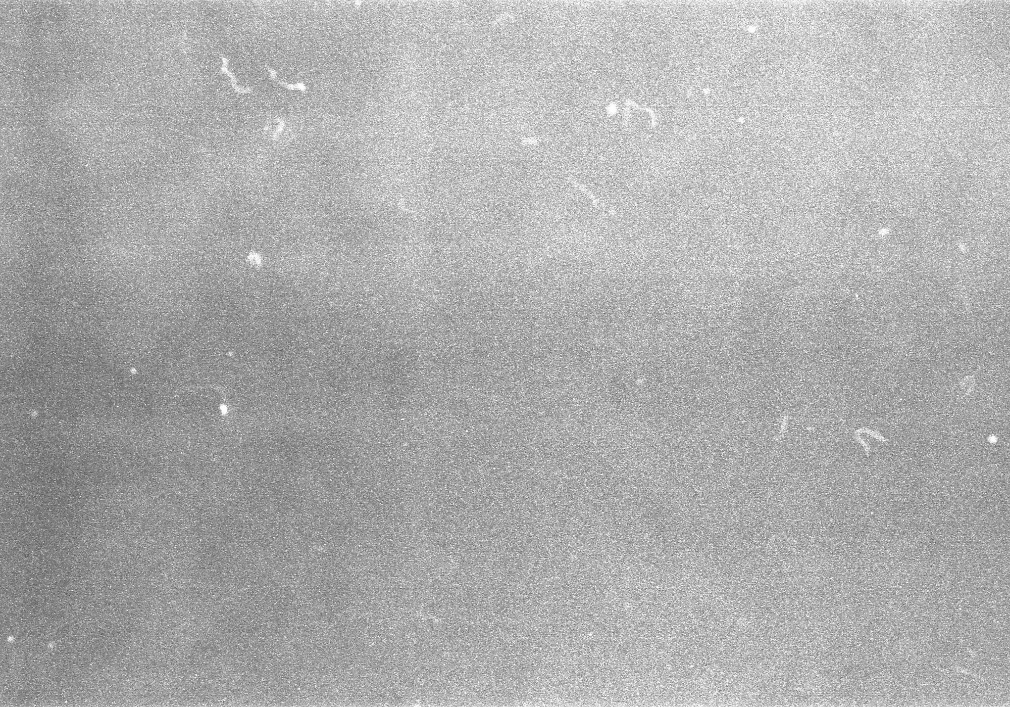 Example of noise on an image from an old fashioned film frame.
