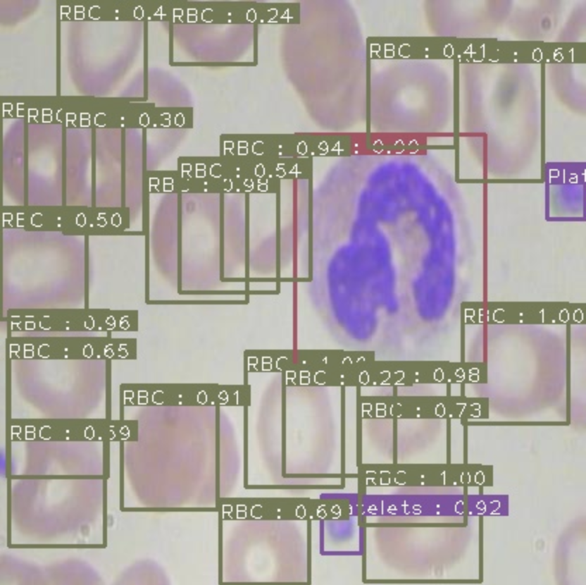 Inference screenshot detecting blood cells and platelets in the BCCD dataset.