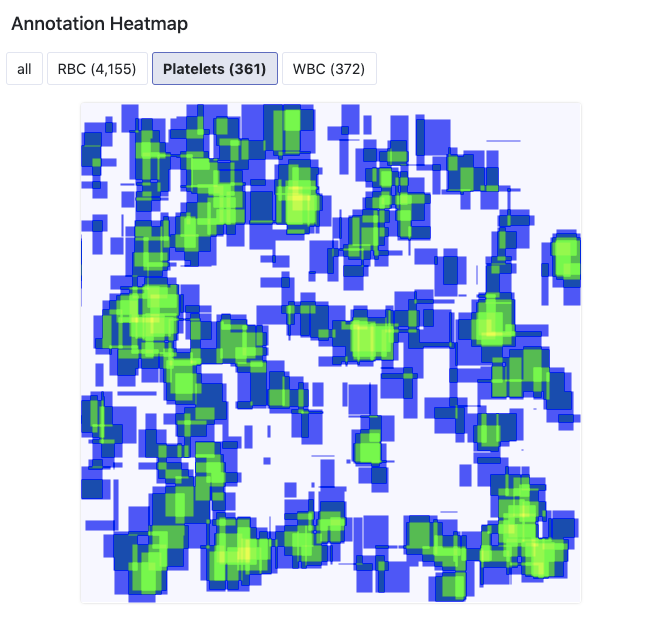Roboflow Screenshot: Annotation Heatmap of Platelets (361 examples)