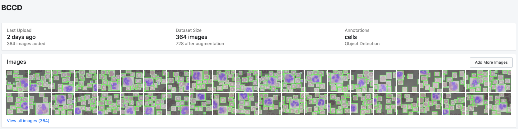 Roboflow Screenshot: BCCD dataset example images and overview statistics (last updated, dataset size, annotation info)
