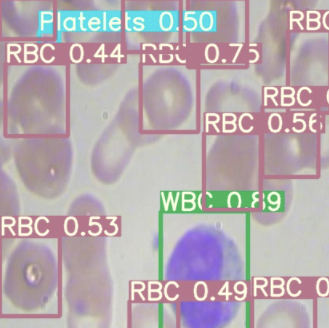 YOLOv5 inference on BCCD (RBC, WBC, Platelets)