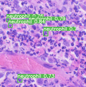 Image of a slide with white blood cells in it and five neutrophil identified.